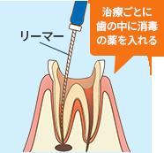 「リーマー」という器具を使って歯の中に入っている古い薬を取り除きます。