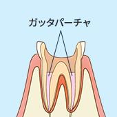 状態がよくなったら歯の中の空洞を「ガッタパーチャ」という薬で封鎖します。