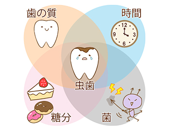 虫歯の原因と予防