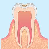 歯の表面に虫歯がでる
