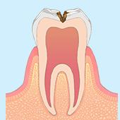 虫歯が神経に近くなり冷たいものがしみる