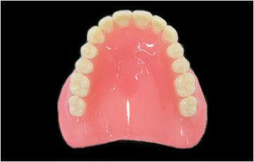 レジン床義歯(保険)