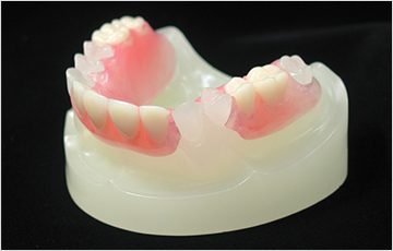 ノンクラスプ義歯