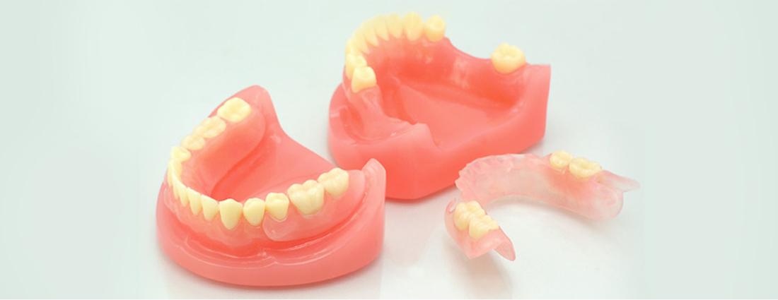 入れ歯製作の流れ