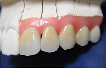 信頼できる歯科技工士との協力