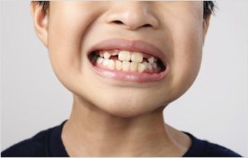上顎の未発達が関連する症状