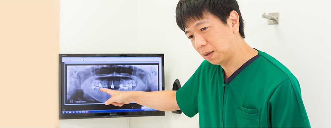 インプラントは、失った歯の機能を回復する治療