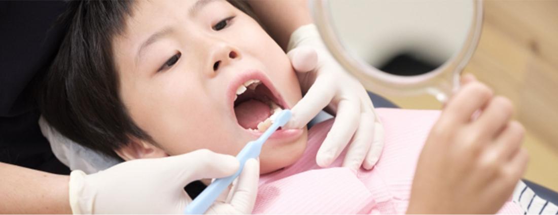 正しい予防でお子様の歯を守りましょう
