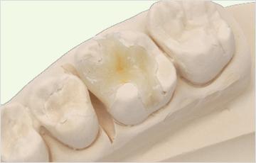 小さな虫歯(エナメル質う触):白い樹脂で修復する