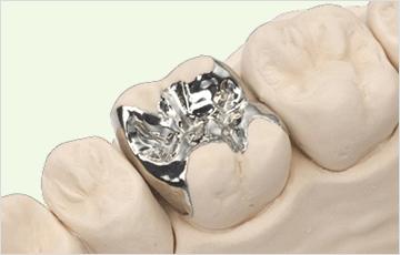 中程度の虫歯(象牙質う触):詰め物で修復する