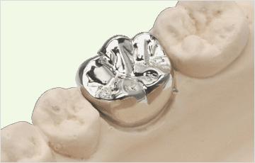 大きな虫歯や深い虫歯(神経に達したう触):被せ物で修復する