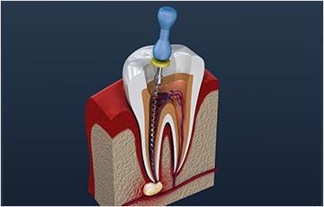 歯の寿命を引き延ばす根管治療