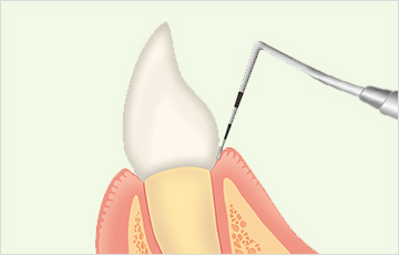 歯周ポケット検査