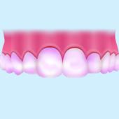 歯石染め出し剤で汚れを確認