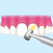 歯間や歯面をクリーニング