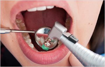 歯質を強くするフッ素塗布