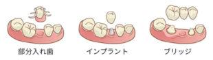 残根の治療または抜歯の治療