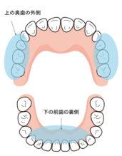 歯石がつきやすい部分